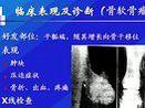 外科护理学(专升本)76-考研视频-西安交大-要密码到www.Daboshi.com