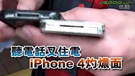 听电话冲住电 iPhone4烧伤面