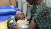 """全球最""""诡异""""的小孩,一出生就自带火种,三个月的时间自燃四次"""