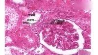 泌尿系统(正式版)