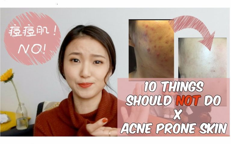痘痘特辑一 | 痘痘肌不要做的10件事 | 10 things you should not do with acne-